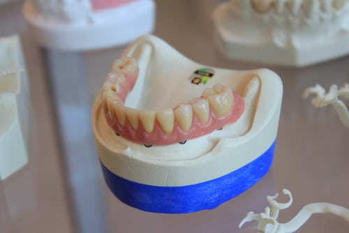 The main reasons you need to get a dental implant today!